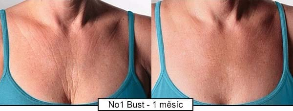 Takto krém na omlazení pokožky dekoltu a krku No.1 Bust působí už po 1 měsíci pravidelné aplikace.