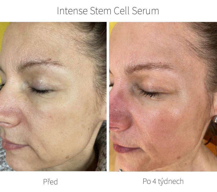 Co vše sérum Stem Cell dokáže? Všimněte si například výrazného zjemnění vrásek na čele, okolo očí a rtů nebo vypnutí a vyplnění povadající pleti a sjednocení jejího tónu.